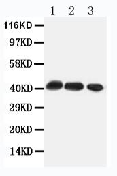 Anti-CCR4 antibody, PA1517, Western blotting<br>All lanes: Anti CCR4 (PA1517) at 0.5ug/ml<br>Lane 1: Rat Thymus Tissue Lysate at 50ug<br>Lane 2: Rat Spleen Tissue Lysate at 50ug<br>Lane 3: HEPA Whole Cell Lysate at 40ug<br>Predicted bind size: 41KD<br>Observed bind size: 41KD