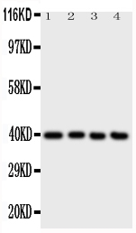 Anti-ATF4 antibody, PA1537, Western blotting<br>All lanes: Anti ATF4 (PA1537) at 0.5ug/ml<br> Lane 1: A431 Whole Cell Lysate at 40ug<br> Lane 2: RAJI Whole Cell Lysate at 40ug<br> Lane 3: CEM Whole Cell Lysate at 40ug<br> Lane 4: HUT Whole Cell Lysate at 40ug<br> Predicted bind size: 39KD<br> Observed bind size: 39KD
