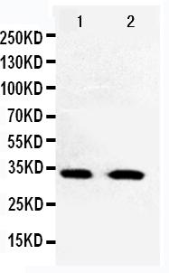 /antibody/pa1548-1-WB-anti-cdk5-antibody.jpg
