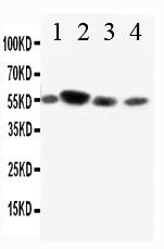 /antibody/pa1549-1-WB-anti-cd89-antibody.jpg