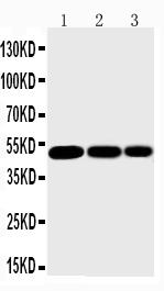 Anti-IKK gamma antibody, PA1551, Western blotting<br>Lane 1: Mouse Liver Tissue Lysate<br>Lane 2: Mouse Brain Tissue Lysate<br>Lane 3: Mouse Ovary Tissue Lysate<br>