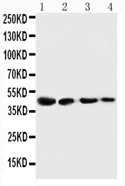 Anti-Cystathionase antibody, PA1556, Western blotting<br>Lane 1: SMMC Cell Lysate<br>Lane 2: HT180 Cell Lysate<br>Lane 3: HELA Cell Lysate<br>Lane 4: U87 Cell Lysate<br>