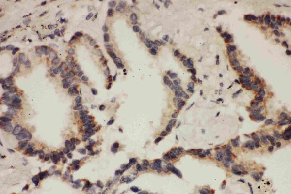 Anti- Cullin 1 antibody, PA1557, IHC(P)IHC(P): Human Lung Cancer Tissue