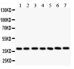 /antibody/pa1562-1-WB-anti-lif-antibody.jpg