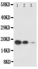 Anti-SCF antibody, PA1565, Western blottingAll lanes: Anti SCF (PA1565) at 0.5ug/ml Lane 1: Recombinant Human SCF Protein 10ng Lane 2: Recombinant Human SCF Protein 5ng Lane 3: Recombinant Human SCF Protein 2.5ng Predicted bind size: 18.4KD Observed bind size: 18.4KD
