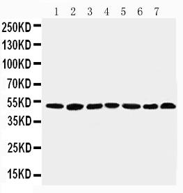 Anti-CtBP1 antibody, PA1570, Western blotting<br>Lane 1: Rat Brain Tissue Lysate<br>Lane 2: Rat Testis Tissue Lysate<br>Lane 3: Rat Ovary Tissue Lysate<br>Lane 4: U87 Cell Lysate<br>Lane 5: SW620 Cell Lysate<br>Lane 6: HT1080 Cell Lysate<br>Lane 7: COLO32 Cell Lysate