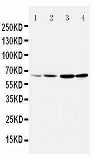 Anti-DRD1 antibody, PA1571, Western blotting<br>Lane 1: Rat Testis Tissue Lysate<br>Lane 2: Rat Brain Tissue Lysate<br>Lane 3: U87 Cell Lysate<br>Lane 4: HELA Cell Lysate<br>
