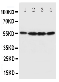 Anti-Fascin antibody, PA1575, Western blotting<br>All lanes: Anti Fascin (PA1575) at 0.5ug/ml<br> Lane 1: U87 Whole Cell Lysate at 40ug<br> Lane 2: A549 Whole Cell Lysate at 40ug<br> Lane 3: MCF-7 Whole Cell Lysate at 40ug<br> Lane 4: HT1080 Whole Cell Lysate at 40ug<br> Predicted bind size: 55KD<br> Observed bind size: 55KD