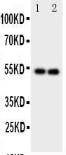 Anti-GABA A Receptor alpha 1 antibody, PA1578, Western blotting<br>Lane 1: Rat Brain Tissue Lysate<br>Lane 2: Rat Brain Tissue Lysate<br>