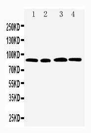 Anti-CD168 antibody, PA1592, Western blotting<br>Lane 1: MM231 Cell Lysate<br>Lane 2: MM453 Cell Lysate<br>Lane 3: HELA Cell Lysate<br>Lane 4: A549 Cell Lysate