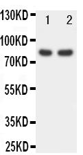 Anti-FOXP1 antibody, PA1593, Western blotting<br>Lane 1: Rat Spleen Tissue Lysate<br>Lane 2: COLO320 Cell Lysate<br>