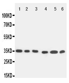 Anti-Caspase-9 antibody, PA1595, Western blottingAll lanes: Anti Caspase-9 (PA1595) at 0.5ug/mlLane 1: SMMC Whole Cell Lysate at 40ugLane 2: MCF-7 Whole Cell Lysate at 40ugLane 3: CEM Whole Cell Lysate at 40ugLane 4: JURKAT Whole Cell Lysate at 40ugLane 5: RAJI Whole Cell Lysate at 40ugLane 6: HELA Whole Cell Lysate at 40ugPredicted bind size: 35KDObserved bind size: 35KD
