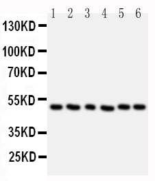 Figure 6. Western blot analysis of HDAC3 using anti-HDAC3 antibody (PA1600-1). <br> Electrophoresis was performed on a 5-20% SDS-PAGE gel at 70V (Stacking gel) / 90V (Resolving gel) for 2-3 hours. The sample well of each lane was loaded with 50ug of sample under reducing conditions. <br> Lane 1: Rat Stomach Tissue Lysate<br> Lane 2: Rat Testis Tissue Lysate<br> Lane 3: MCF-7 Cell Lysate<br> Lane 4: HELA Cell Lysate<br> Lane 5: JURKAT Cell Lysate<br> Lane 6: SKOV Cell Lysate <br> After Electrophoresis, proteins were transferred to a Nitrocellulose membrane at 150mA for 50-90 minutes. Blocked the membrane with 5% Non-fat Milk/ TBS for 1.5 hour at RT. The membrane was incubated with rabbit anti-HDAC3 antigen affinity purified polyclonal antibody (Catalog # PA1600-1) at 0.5 μg/mL overnight at 4°C, then washed with TBS-0.1%Tween 3 times with 5 minutes each and probed with a goat anti-rabbit IgG-HRP secondary antibody at a dilution of 1:10000 for 1.5 hour at RT. The signal is developed using an Enhanced Chemiluminescent detection (ECL) kit (Catalog # EK1002) with Tanon 5200 system.