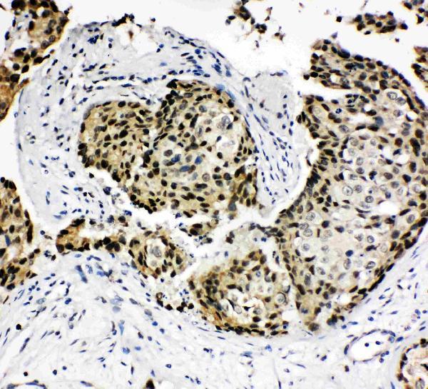 /antibody/pa1603-2-IHC-anti-hoxa4-antibody.jpg