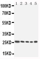 /antibody/pa1605-1-WB-anti-hoxa6-antibody.jpg