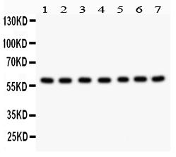 /antibody/pa1607-1_1-WB-anti-hsf2-antibody.jpg