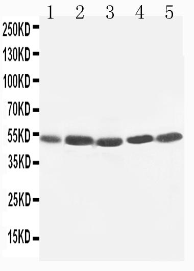 Anti-TIM 1 antibody, PA1624, Western blotting<br>Lane 1: SMMC Cell Lysate <br>Lane 2: HELA Cell Lysate<br>Lane 3: PANC Cell Lysate<br>Lane 4: M231 Cell Lysate<br>Lane 5: M453 Cell Lysate<br>