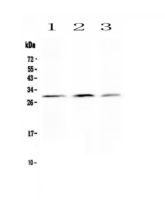Anti-Kallikrein 2 antibody, PA1626, Western blotting<br>All lanes: Anti Kallikrein 2 (PA1626) at 0.5ug/ml<br> Lane 1: PANC Whole Cell Lysate at 40ug<br> Lane 2: HELA Whole Cell Lysate at 40ug<br> Lane 3: 293T Whole Cell Lysate at 40ug<br> Predicted bind size: 29KD<br> Observed bind size: 29KD