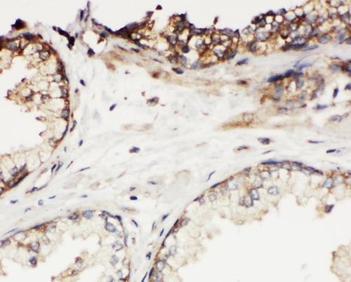 /antibody/pa1631-2-IHC-anti-klk11-kallikrein-11-antibody.jpg