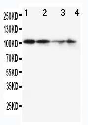Anti-MCM2 antibody, PA1650, Western blotting<br>Lane 1: SW620 Cell Lysate <br>Lane 2: PANC Cell Lysate <br>Lane 3: JURKAT Cell Lysate<br>Lane 4: HELA Cell Lysate