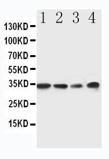 Anti-MyD88 antibody, PA1660, Western blotting<br>Lane 1: Rat Spleen Tissue Lysate <br>Lane 2: Rat Thymus Tissue Lysate <br>Lane 3: JURKAT Cell Lysate<br>Lane 4: RAJI Cell Lysate<br>