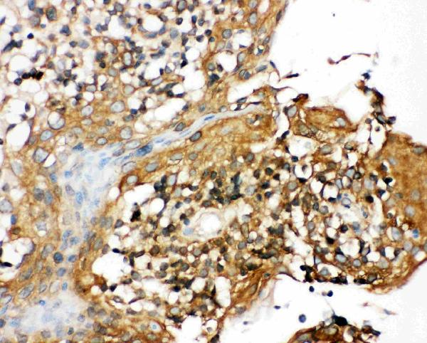 Figure 2. IHC analysis of CIAS1/NALP3 using anti- CIAS1/NALP3 antibody (PA1665).<br> CIAS1/NALP3 was detected in paraffin-embedded section of human tonsil tissues. Heat mediated antigen retrieval was performed in citrate buffer (pH6, epitope retrieval solution) for 20 mins. The tissue section was blocked with 10% goat serum. The tissue section was then incubated with 1μg/ml rabbit anti- CIAS1/NALP3 Antibody (PA1665) overnight at 4°C. Biotinylated goat anti-rabbit IgG was used as secondary antibody and incubated for 30 minutes at 37°C. The tissue section was developed using Strepavidin-Biotin-Complex (SABC)(Catalog # SA1022) with DAB as the chromogen.