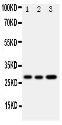/antibody/pa1668-1-WB-anti-osm-oncostatin-m-antibody.jpg