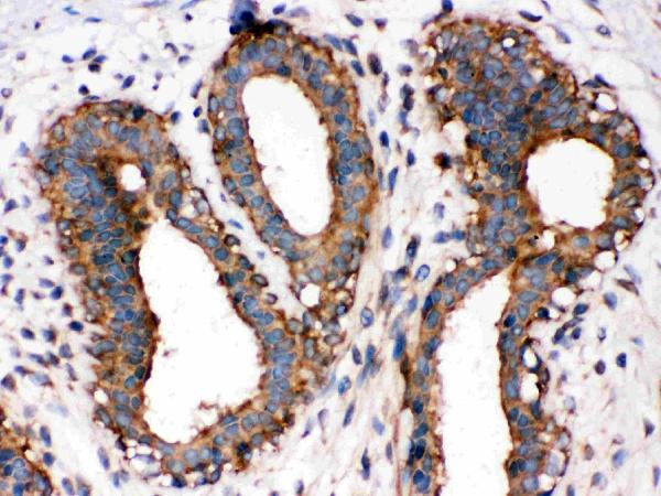 Anti-NF-kB p65 antibody, PA1669, IHC(P)IHC(P): Human Mammary Cancer Tissue
