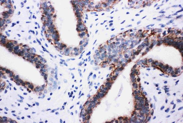 /antibody/pa1680-2-IHC-anti-pik3r2-pi-3-kinase-p85-beta-antibody.jpg