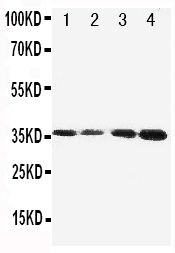 Figure 1. Western blot analysis of Protein C using anti- Protein C antibody (PA1682). <br> Electrophoresis was performed on a 5-20% SDS-PAGE gel at 70V (Stacking gel) / 90V (Resolving gel) for 2-3 hours. The sample well of each lane was loaded with 50ug of sample under reducing conditions. <br> Lane 1: JURKAT Cell Lysate   <br>                                        Lane 2: CEM Cell Lysate<br> Lane 3: SMMC Cell Lysate<br> Lane 4: HELA Cell Lysate. <br> After Electrophoresis, proteins were transferred to a Nitrocellulose membrane at 150mA for 50-90 minutes. Blocked the membrane with 5% Non-fat Milk/ TBS for 1.5 hour at RT. The membrane was incubated with rabbit anti- Protein C antigen affinity purified polyclonal antibody (Catalog # PA1682) at 0.5 μg/mL overnight at 4°C, then washed with TBS-0.1%Tween 3 times with 5 minutes each and probed with a goat anti-rabbit IgG-HRP secondary antibody at a dilution of 1:10000 for 1.5 hour at RT. The signal is developed using an Enhanced Chemiluminescent detection (ECL) kit (Catalog # EK1002) with Tanon 5200 system. A specific band was detected for Protein C at approximately 36KD. The expected band size for Protein C is at 52KD.
