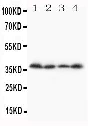 Anti-Stra8 antibody, PA1685, Western blotting<br>Lane 1: A231 Cell Lysate<br>Lane 2: JURKAT Cell Lysate<br>Lane 3: HT1080 Cell Lysate<br>Lane 4: SCG Cell Lysate