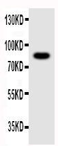 Anti-NLRP4G antibody, PA1687, Western blotting<br>WB: Mouse Ovary Tissue Lysate