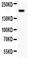 Anti-  ITGB4 antibody, PA1702-1, Western blotting<br>All lanes: Anti ITGB4 (PA1702-1) at 0.5ug/ml<br>WB: A431 Whole Cell Lysate at 40ug<br>Predicted bind size: 200KD<br>Observed bind size: 200KD