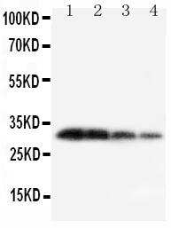 Anti-Kallikrein 1 antibody, PA1709, Western blotting<br>Lane 1: Recombinant Mouse KLK1 Protein 10ng<br>Lane 2: Recombinant Mouse KLK1 Protein 5ng<br>Lane 3: Recombinant Mouse KLK1 Protein 2.5ng<br>Lane 4: Recombinant Mouse KLK1 Protein 1.25ng