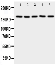 Figure 1. Western blot analysis of RFC1 using anti- RFC1 antibody (PA1716). <br> Electrophoresis was performed on a 5-20% SDS-PAGE gel at 70V (Stacking gel) / 90V (Resolving gel) for 2-3 hours. The sample well of each lane was loaded with 50ug of sample under reducing conditions. <br> Lane 1: HELA Cell Lysate,<br> Lane 2: SMMC Cell Lysate,<br> Lane 3: JURKAT Cell Lysate,<br> Lane 4: CCRF-CEM Cell Lysate,<br> Lane 5: 293T Cell Lysate.<br> After Electrophoresis, proteins were transferred to a Nitrocellulose membrane at 150mA for 50-90 minutes. Blocked the membrane with 5% Non-fat Milk/ TBS for 1.5 hour at RT. The membrane was incubated with rabbit anti- RFC1 antigen affinity purified polyclonal antibody (Catalog # PA1716) at 0.5 μg/mL overnight at 4°C, then washed with TBS-0.1%Tween 3 times with 5 minutes each and probed with a goat anti-rabbit IgG-HRP secondary antibody at a dilution of 1:10000 for 1.5 hour at RT. The signal is developed using an Enhanced Chemiluminescent detection (ECL) kit (Catalog # EK1002) with Tanon 5200 system. A specific band was detected for RFC1 at approximately 150KD. The expected band size for RFC1 is at 128KD.