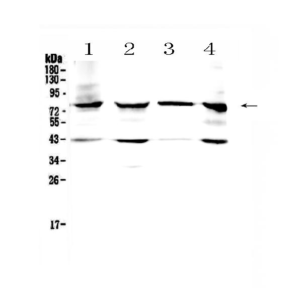 <strong>Figure 1. Western blot analysis of HSD17B4 using anti- HSD17B4 antibody (PA1727). </strong><br> Electrophoresis was performed on a 5-20% SDS-PAGE gel at 70V (Stacking gel) / 90V (Resolving gel) for 2-3 hours. The sample well of each lane was loaded with 50ug of sample under reducing conditions. <br> Lane 1: mouse heart tissue lysates, <br> Lane 2: rat heart tissue lysates, <br> Lane 3: human placenta tissue lysates, <br> Lane 4: MCF-7 whole cell lysates. <br> After Electrophoresis, proteins were transferred to a Nitrocellulose membrane at 150mA for 50-90 minutes. Blocked the membrane with 5% Non-fat Milk/ TBS for 1.5 hour at RT. The membrane was incubated with rabbit anti- HSD17B4 antigen affinity purified polyclonal antibody (Catalog # PA1727) at 0.5 μg/mL overnight at 4°C, then washed with TBS-0.1%Tween 3 times with 5 minutes each and probed with a goat anti-rabbit IgG-HRP secondary antibody at a dilution of 1:10000 for 1.5 hour at RT. The signal is developed using an Enhanced Chemiluminescent detection (ECL) kit (Catalog # EK1002) with Tanon 5200 system. A specific band was detected for HSD17B4 at approximately 80KD. The expected band size for HSD17B4 is at 80KD.