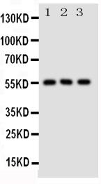 Anti-SLC2A5 antibody, PA1737, Western blotting<br>All lanes: Anti SLC2A5 (PA1737) at 0.5ug/ml<br>Lane 1: Rat Kidney Tissue Lysate at 50ug<br>Lane 2: Rat Liver Tissue Lysate at 50ug<br>Lane 3: Mouse Kidney Tissue Lysate at 50ug<br>Predicted bind size: 55KD<br>Observed bind size: 55KD