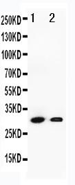 Anti-Granzyme B antibody, PA1738, Western blotting<br>Lane 1: SMMC Cell Lysate <br>Lane 2: HEPA Cell Lysate <br>