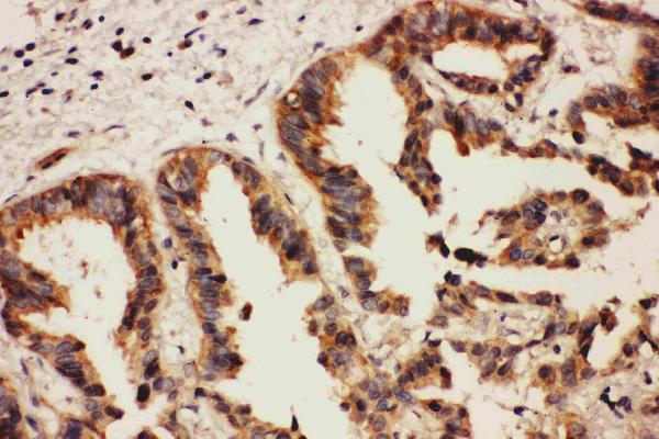 /antibody/pa1744-2-IHC-anti-eph-receptor-a2-antibody.jpg