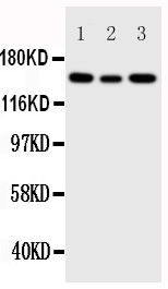 Anti-IGF1 Receptor antibody, PA1746, Western blotting<br>Lane 1: 293T Cell Lysate <br>Lane 2: A549 Cell Lysate <br>Lane 3: MCF-7 Cell Lysate <br>