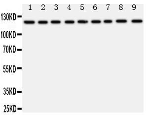 Anti-TRPC3 antibody, PA1753, Western blotting<br>All lanes: Anti TRPC3 (PA1753) at 0.5ug/ml<br>Lane 1: Rat Liver Tissue Lysate at 50ug<br>Lane 2: Rat Lung Tissue Lysate at 50ug<br>Lane 3: Rat Intestine Tissue Lysate at 50ug<br>Lane 4: Rat Ovary Tissue Lysate at 50ug<br>Lane 5: U87 Whole Cell Lysate at 40ug<br>Lane 6: A549 Whole Cell Lysate at 40ug<br>Lane 7: COLO320 Whole Cell Lysate at 40ug<br>Lane 8: SW620 Whole Cell Lysate at 40ug<br>Lane 9: HELA Whole Cell Lysate at 40ug<br>Predicted bind size: 97KD<br>Observed bind size: 120KD