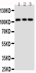 Figure 1. Western blot analysis of TRPC6 using anti- TRPC6 antibody (PA1754). <br> Electrophoresis was performed on a 5-20% SDS-PAGE gel at 70V (Stacking gel) / 90V (Resolving gel) for 2-3 hours. The sample well of each lane was loaded with 50ug of sample under reducing conditions. <br> Lane 1: Rat Lung Tissue Lysate<br> Lane 2: 293T Cell Lysate<br> Lane 3: 293T Cell Lysate <br> After Electrophoresis, proteins were transferred to a Nitrocellulose membrane at 150mA for 50-90 minutes. Blocked the membrane with 5% Non-fat Milk/ TBS for 1.5 hour at RT. The membrane was incubated with rabbit anti- TRPC6 antigen affinity purified polyclonal antibody (Catalog # PA1754) at 0.5 μg/mL overnight at 4°C, then washed with TBS-0.1%Tween 3 times with 5 minutes each and probed with a goat anti-rabbit IgG-HRP secondary antibody at a dilution of 1:10000 for 1.5 hour at RT. The signal is developed using an Enhanced Chemiluminescent detection (ECL) kit (Catalog # EK1002) with Tanon 5200 system. A specific band was detected for TRPC6 at approximately 106-120KD. The expected band size for TRPC6 is at 106KD.