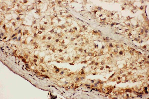 Anti-CACYBP antibody, PA1759,IHC(P)IHC(P): Human Liver Cancer Tissue