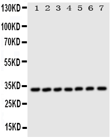 Figure 1. Western blot analysis of DCI using anti-DCI antibody (PA1763). <br> Electrophoresis was performed on a 5-20% SDS-PAGE gel at 70V (Stacking gel) / 90V (Resolving gel) for 2-3 hours. The sample well of each lane was loaded with 50ug of sample under reducing conditions. <br> Lane 1: Rat Liver Tissue Lysate,<br> Lane 2: Human Placenta Tissue Lysate,<br> Lane 3: A549 Whole Cell Lysate,<br> Lane 4: SMMC Whole Cell Lysate,<br> Lane 5: COLO320 Whole Cell Lysate,<br> Lane 6: HELA Whole Cell Lysate,<br> Lane 7: HT1080 Whole Cell Lysate,<br>  After Electrophoresis, proteins were transferred to a Nitrocellulose membrane at 150mA for 50-90 minutes. Blocked the membrane with 5% Non-fat Milk/ TBS for 1.5 hour at RT. The membrane was incubated with rabbit anti-DCI antigen affinity purified polyclonal antibody (Catalog # PA1763) at 0.5 μg/mL overnight at 4°C, then washed with TBS-0.1%Tween 3 times with 5 minutes each and probed with a goat anti-rabbit IgG-HRP secondary antibody at a dilution of 1:10000 for 1.5 hour at RT. The signal is developed using an Enhanced Chemiluminescent detection (ECL) kit (Catalog # EK1002) with Tanon 5200 system. A specific band was detected for DCI at approximately 33KD. The expected band size for DCI is at 33KD.
