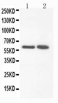/antibody/pa1764-1-WB-anti-fmo3-antibody.jpg