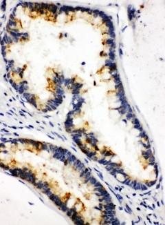 Anti-Kallikrein 6 antibody, PA1767, IHC(P)<br>IHC(P): Human Intestinal Cancer Tissue