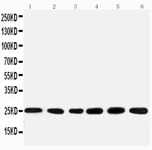 /antibody/pa1775-1-WB-anti-snrpn-antibody.jpg