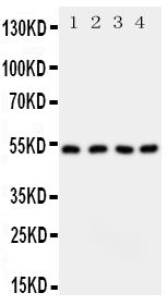 /antibody/pa1777-1-WB-anti-sptlc1-antibody.jpg