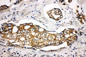 /antibody/pa1777-2-IHC-anti-sptlc1-antibody.jpg