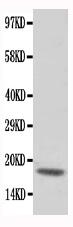 /antibody/pa1779-1-WB-anti-cardiac-troponin-c-antibody.jpg
